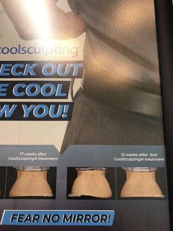 cool sculpting advertisement