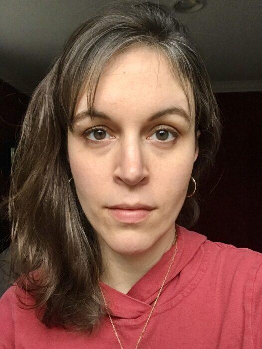 Kristen after nose surgery
