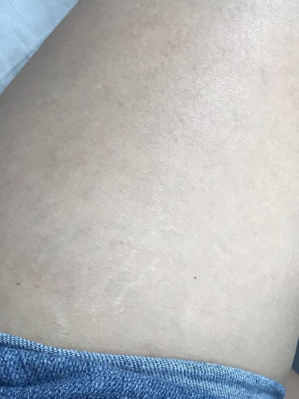 Stretch marks on Kristen's thighs.